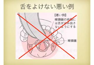 喉頭鏡挿入のポイント